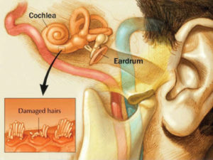 Diagram of the ear, from the eardrum to the cochlea, showing enlarged image of cochlear damage (damaged hair cells)..